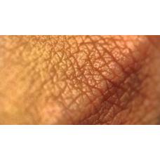 Роговой слой – от корнеобиохимии до корнеотерапии