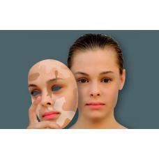 Нарушения пигментации кожи: причины и способы устранения