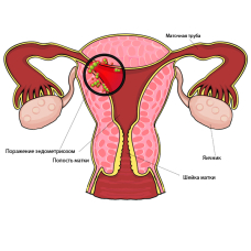 Ароматерапевтическое воздействие эфирных масел при эндометриозе